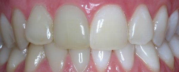 Zahnarztpraxis Dr. Mellinghoff & Kollegen - Ulm   Bleaching
