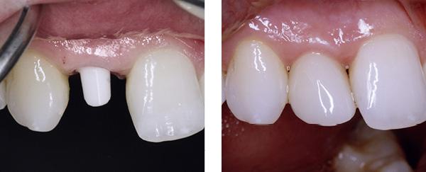 Erfahrung implantat zahn Alternative zum
